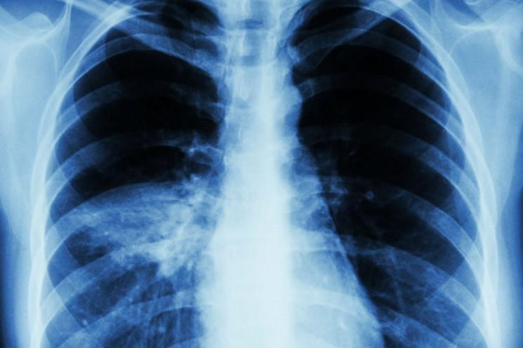 На Кропивнитчине 37 человек заболели пне…