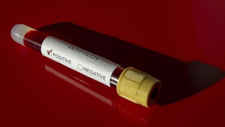 Коронавірус підтвердили у чотирьох медик…