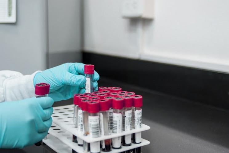 У Шостці коронавірус підтвердили у двох…