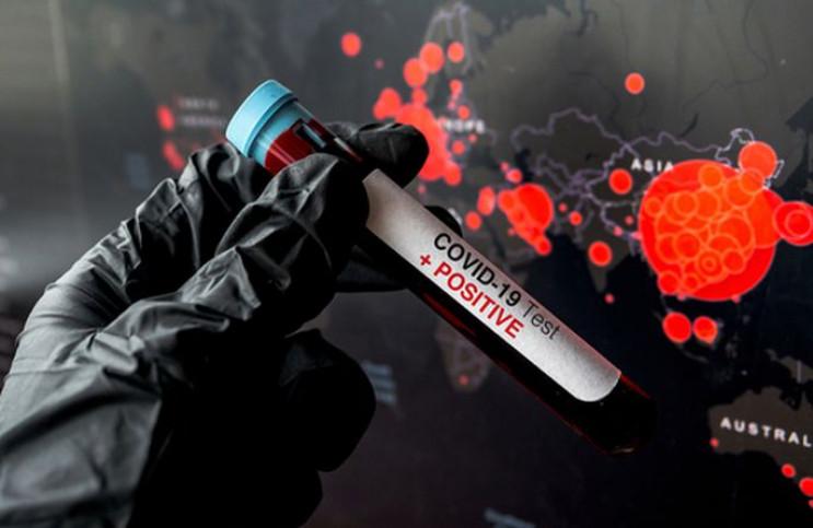 На Хмельниччині зареєстровано 339 лабора…