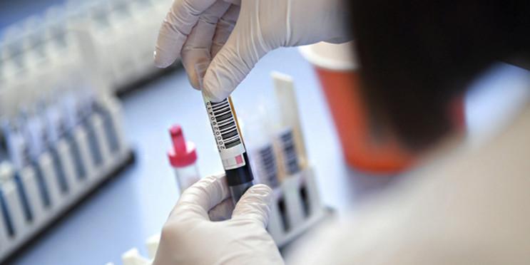 На Тернопільщині 35 нових випадків COVID…