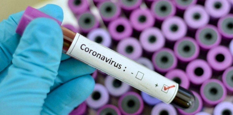 У Дніпрі від коронавірусу померло двоє л…