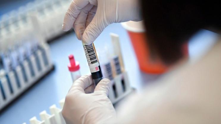 На Хмельниччині 19 нових випадків COVID-…