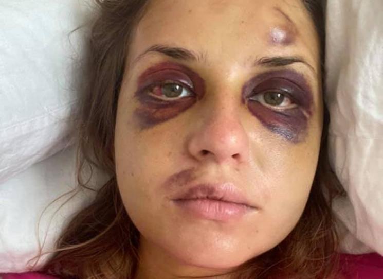 Побита в потязі Анастасія Лугова показал…
