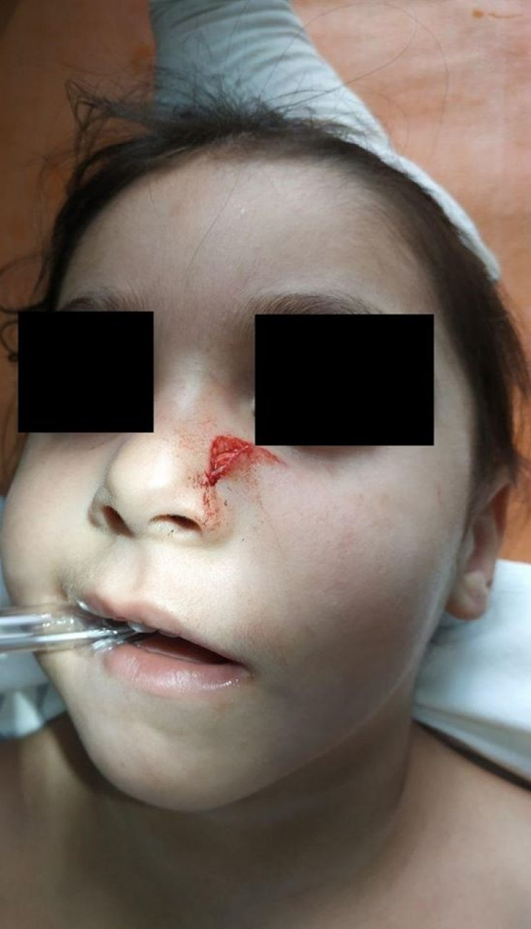 У Дніпрі дитина пробила обличчя металеви…