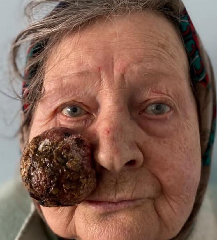 У Дніпрі з обличчя жінки видалили  велич…