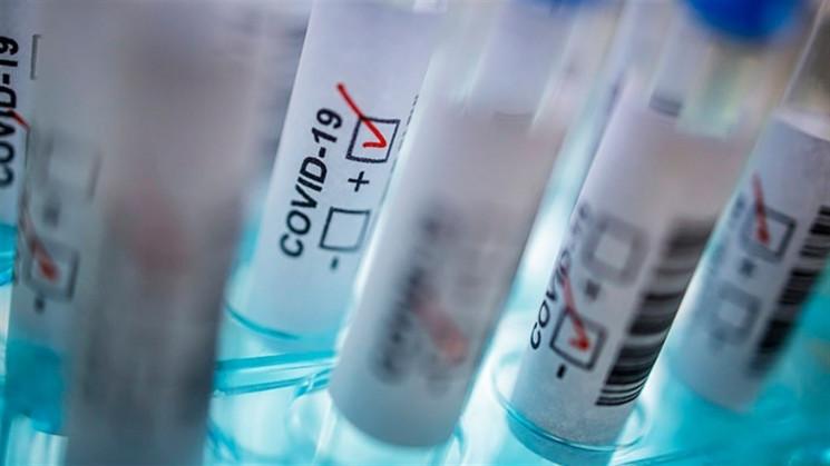 На Запоріжжі – 331 новий випадок COVID-1…