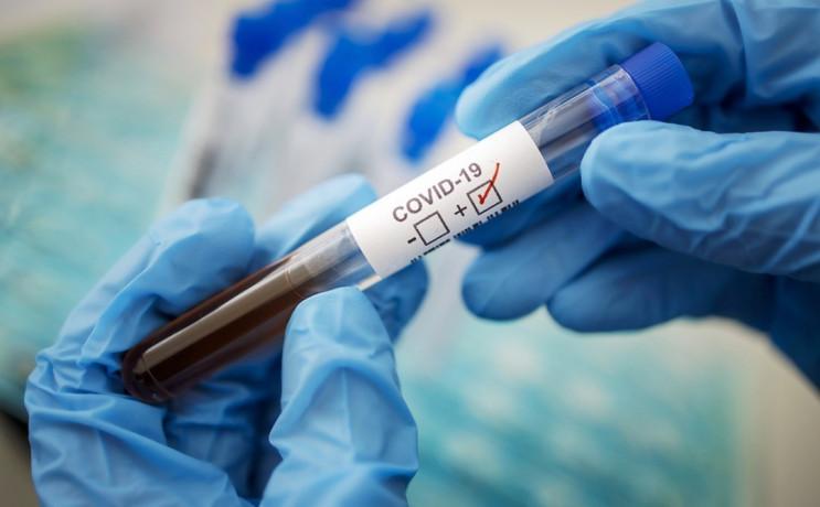 На Херсонщині виявили 204 випадки захвор…