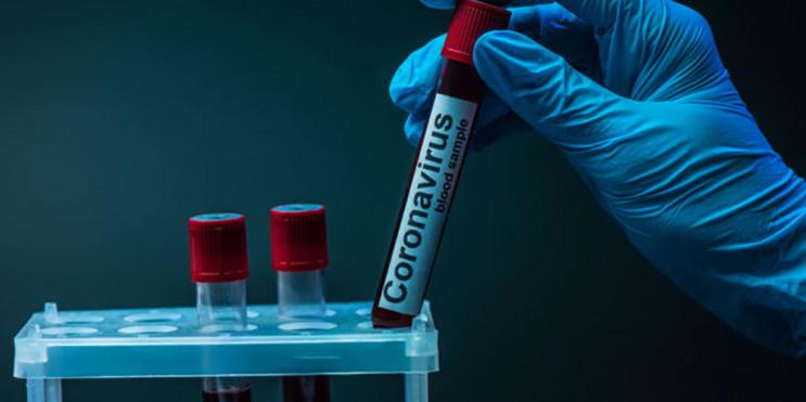 На COVID-19 захворіли 167 прикарпатців,…