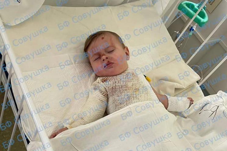 В больнице Днепра спасают ребенка, что о…