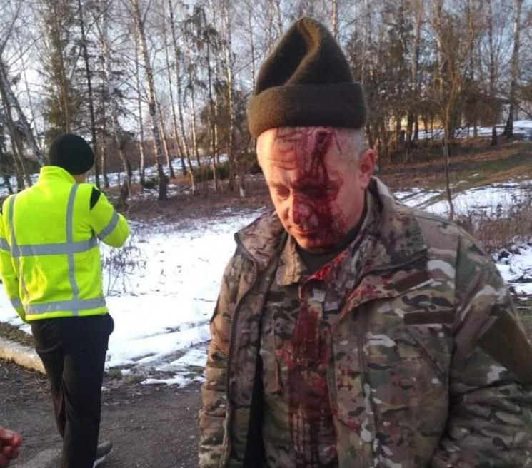 На Тернопільщині побили ветерана АТО…